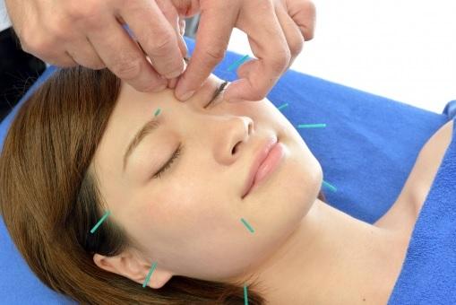 おすすめポイント①美容鍼灸施術のメニューが豊富