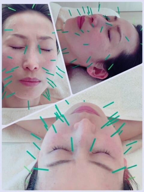 美容鍼 ③